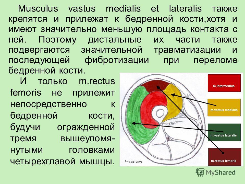 Musculus vastus medialis et lateralis также крепятся и прилежат к бедренной кости,хотя и имеют значительно меньшую площадь контакта с ней. Поэтому дистальные их части также подвергаются значительной травматизации и последующей фибротизации при перело