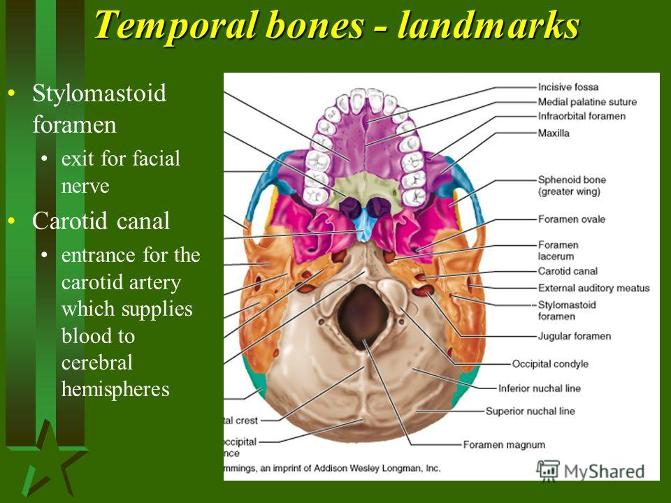 Temporal bones - landmarks Stylomastoid foramen exit for facial nerve Carotid canal entrance for the carotid artery which supplies blood to cerebral hemispheres