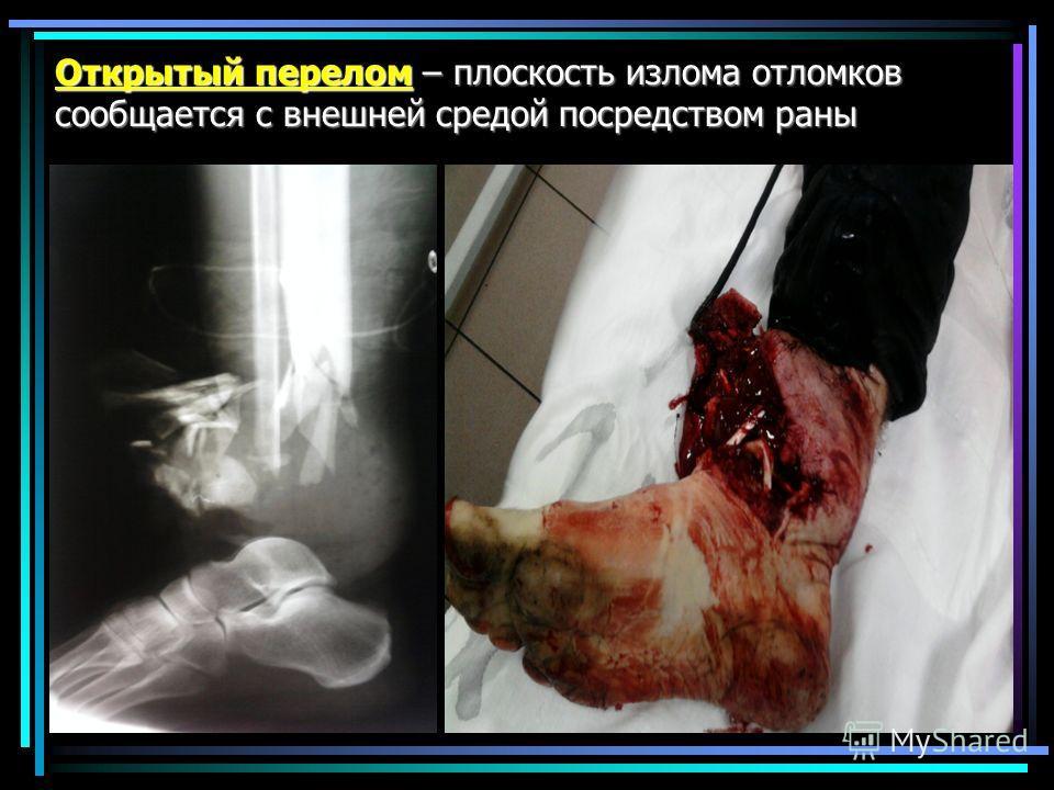 Открытый перелом – плоскость излома отломков сообщается с внешней средой посредством раны