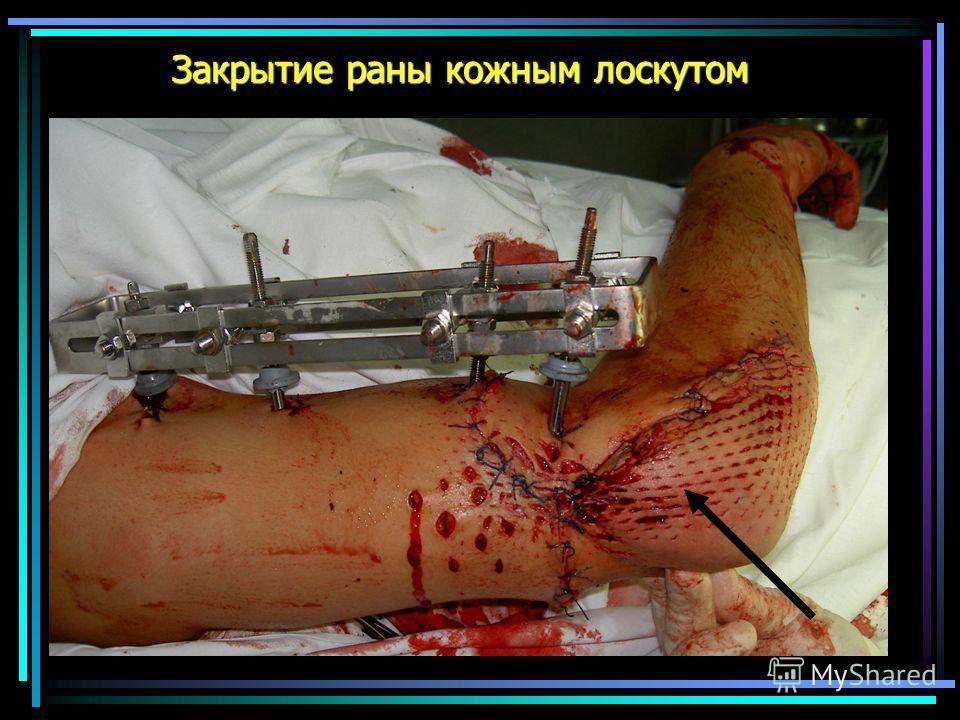 Закрытие раны кожным лоскутом