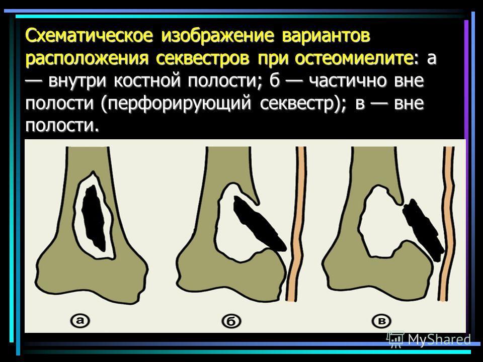 Схематическое изображение вариантов расположения секвестров при остеомиелите: а внутри костной полости; б частично вне полости (перфорирующий секвестр); в вне полости.