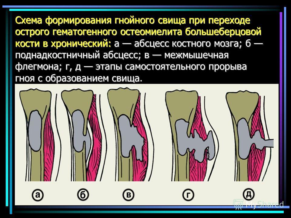 Схема формирования гнойного свища при переходе острого гематогенного остеомиелита большеберцовой кости в хронический: а абсцесс костного мозга; б поднадкостничный абсцесс; в межмышечная флегмона; г, д этапы самостоятельного прорыва гноя с образование