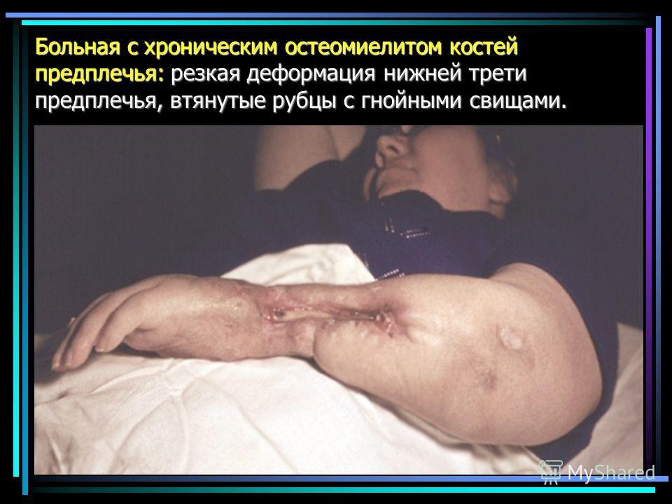 Больная с хроническим остеомиелитом костей предплечья: резкая деформация нижней трети предплечья, втянутые рубцы с гнойными свищами.