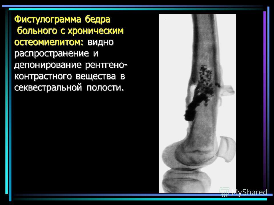 Фистулограмма бедра больного с хроническим остеомиелитом: видно распространение и депонирование рентгено- контрастного вещества в секвестральной полости.