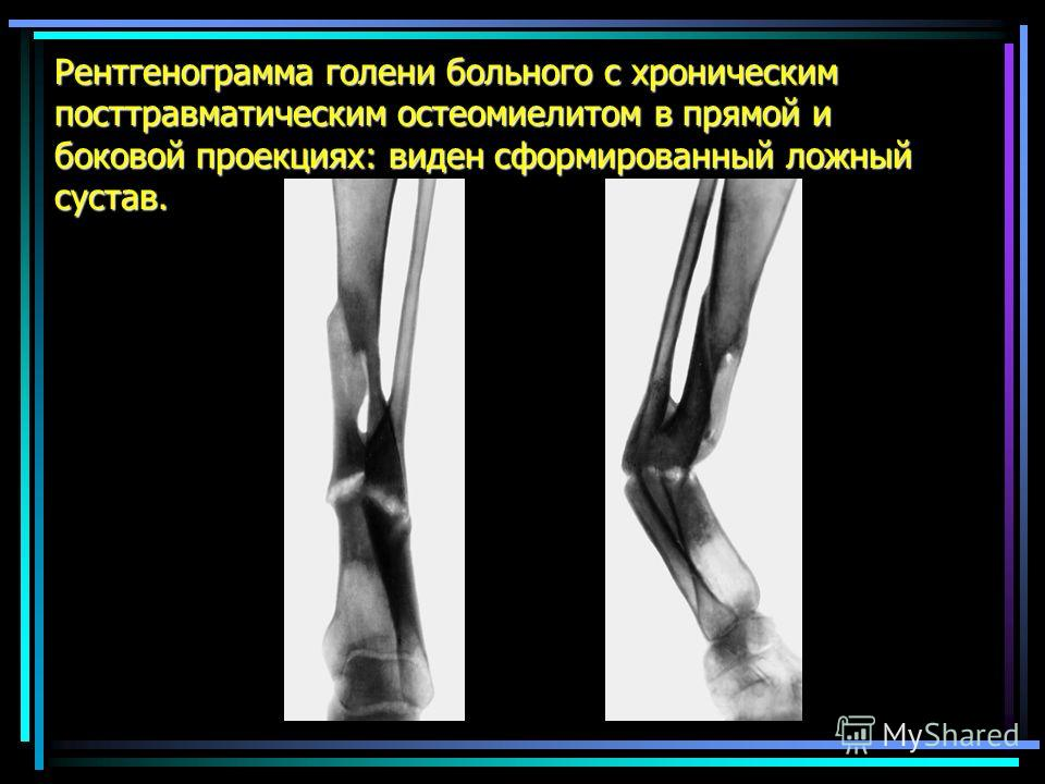 Рентгенограмма голени больного с хроническим посттравматическим остеомиелитом в прямой и боковой проекциях: виден сформированный ложный сустав.