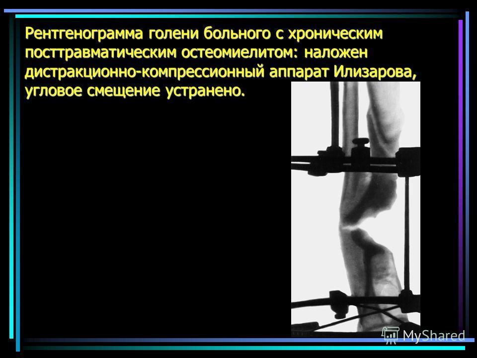 Рентгенограмма голени больного с хроническим посттравматическим остеомиелитом: наложен дистракционно-компрессионный аппарат Илизарова, угловое смещение устранено.