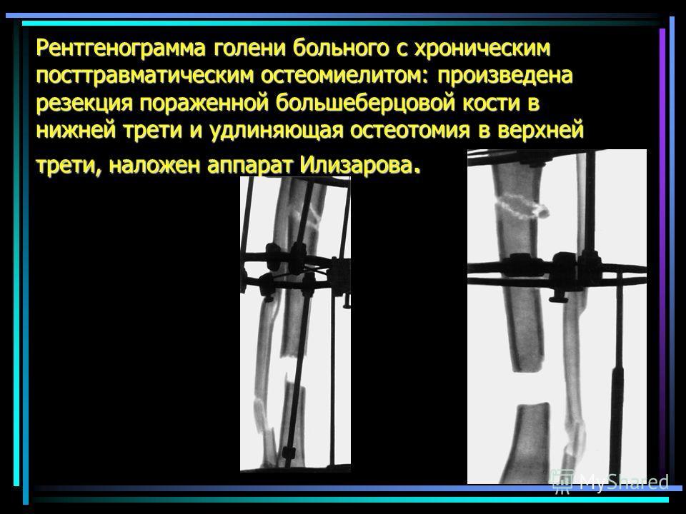 Рентгенограмма голени больного с хроническим посттравматическим остеомиелитом: произведена резекция пораженной большеберцовой кости в нижней трети и удлиняющая остеотомия в верхней трети, наложен аппарат Илизарова.
