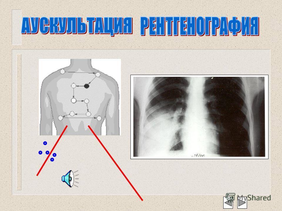Диагностические критерии пневмонии Жалобы Жалобы общая слабость, кашель с отделением слизисто– гнойной мокроты, боли в грудной клетке при дыхании, повышение температуры тела. Осмотр Осмотр одышка, возможен акроцианоз. Аускультативно Аускультативно же