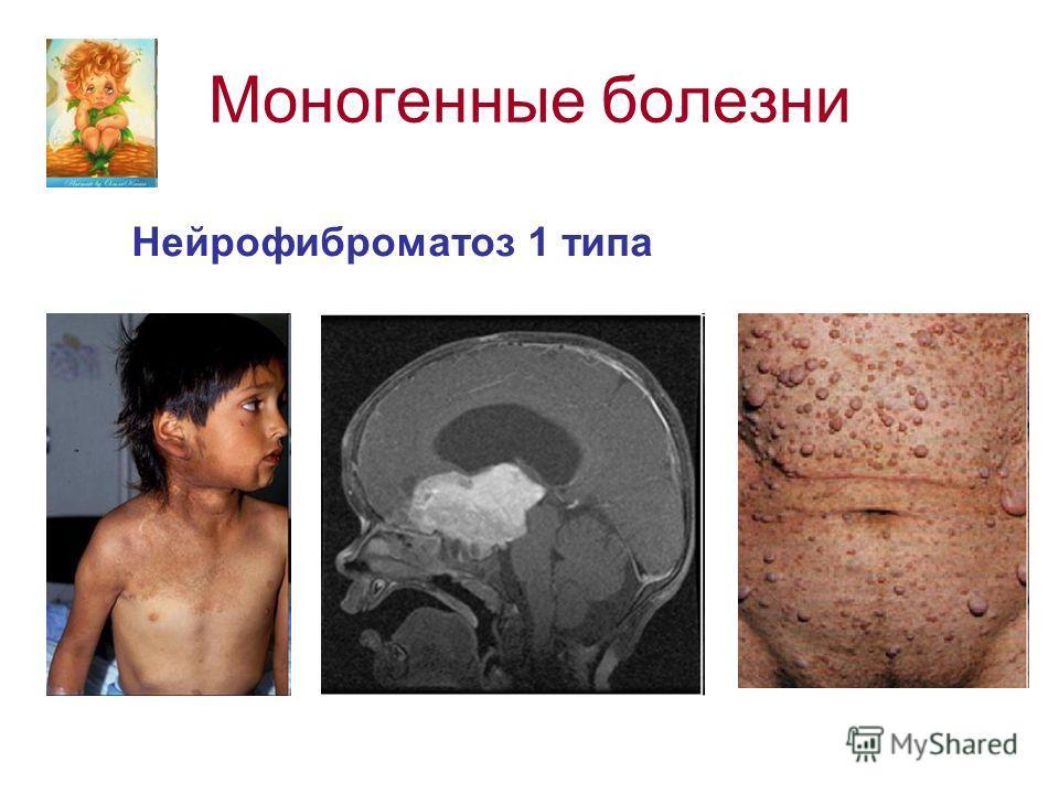 Моногенные болезни Нейрофиброматоз 1 типа