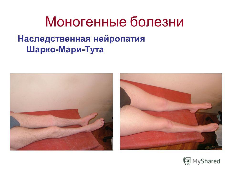 Моногенные болезни Наследственная нейропатия Шарко-Мари-Тута