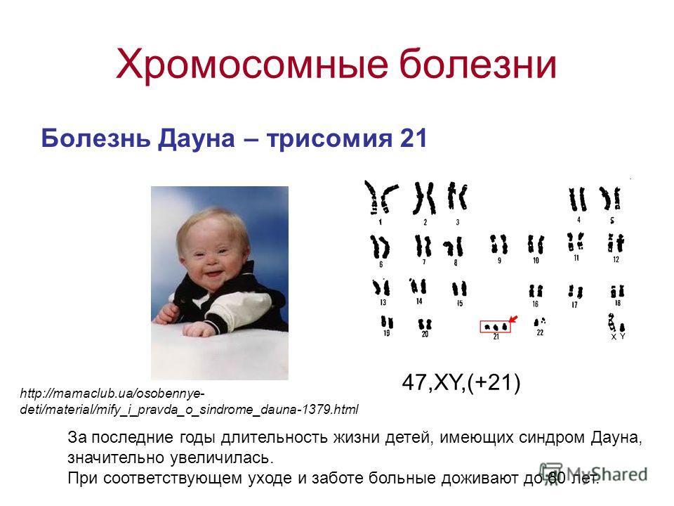 Хромосомные болезни Болезнь Дауна – трисомия 21 47,ХY,(+21) За последние годы длительность жизни детей, имеющих синдром Дауна, значительно увеличилась. При соответствующем уходе и заботе больные доживают до 60 лет. http://mamaclub.ua/osobennye- deti/