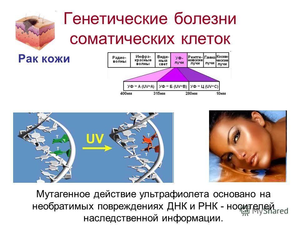 Генетические болезни соматических клеток Рак кожи Мутагенное действие ультрафиолета основано на необратимых повреждениях ДНК и РНК - носителей наследственной информации.