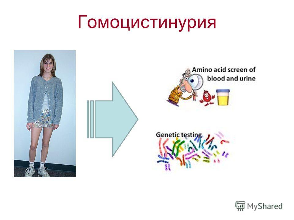 Гомоцистинурия