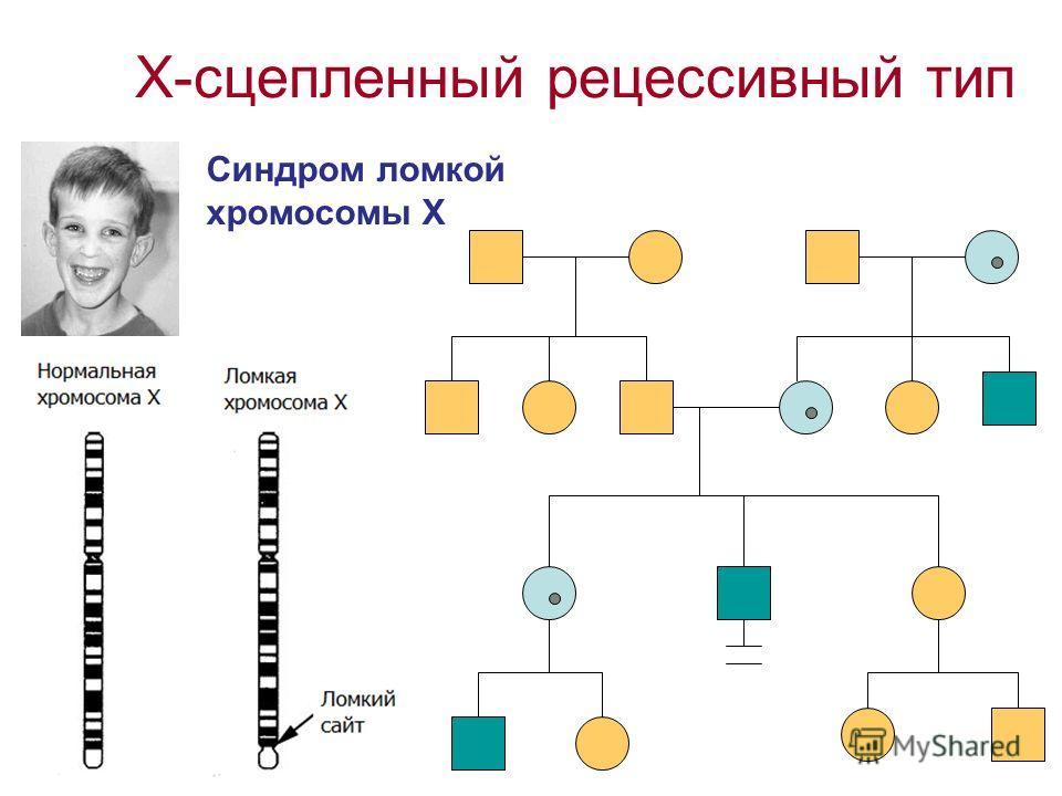Х-сцепленный рецессивный тип Синдром ломкой хромосомы Х