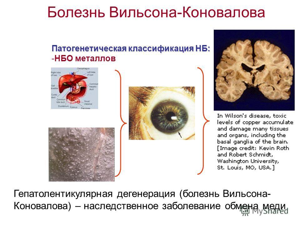 Болезнь Вильсона-Коновалова Патогенетическая классификация НБ: -НБО металлов Гепатолентикулярная дегенерация (болезнь Вильсона- Коновалова) – наследственное заболевание обмена меди