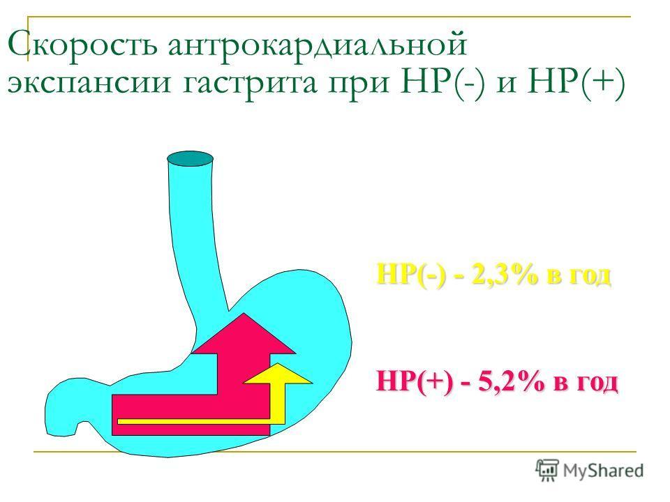 Скорость интракардиальной экспансии гастрита при НР(-) и НР(+) НР(-) - 2,3% в год НР(+) - 5,2% в год