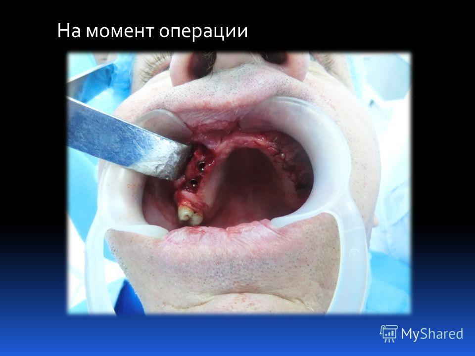 На момент операции