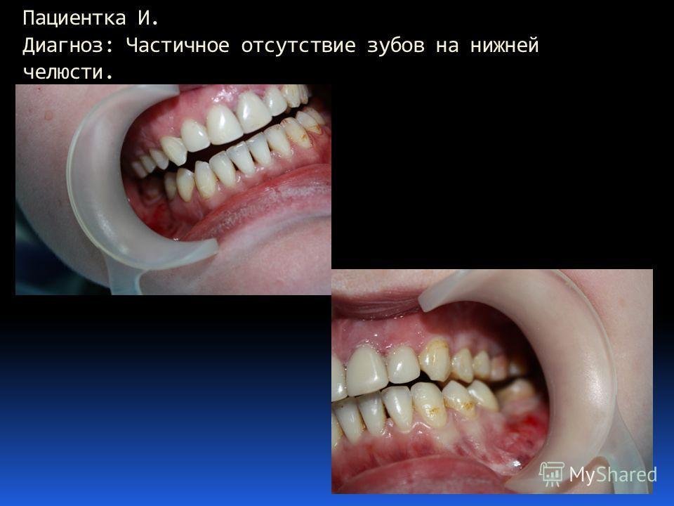 Пациентка И. Диагноз: Частичное отсутствие зубов на нижней челюсти.