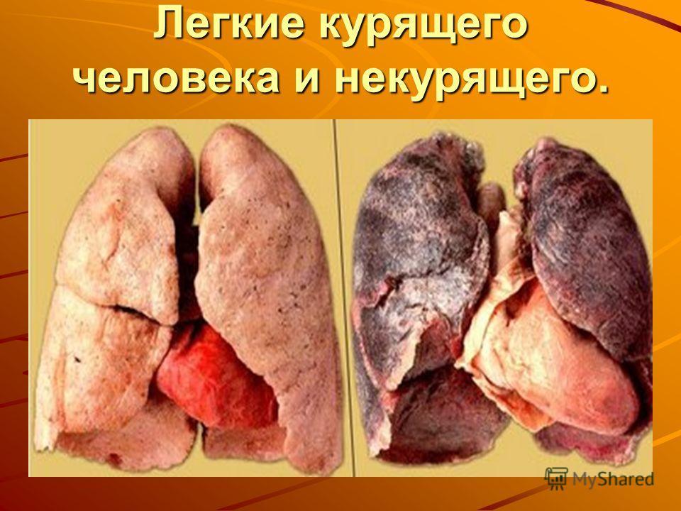 Легкие курящего человека и некурящего.