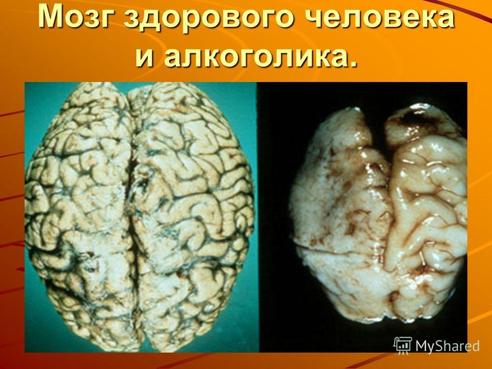 Мозг здорового человека и алкоголика.