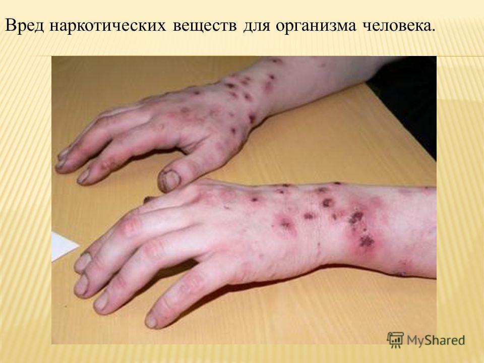 Вред наркотических веществ для организма человека.