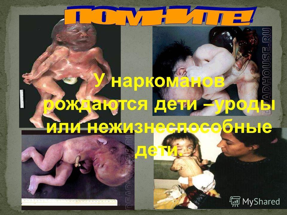 У наркоманов рождаются дети –уроды или нежизнеспособные дети. 42