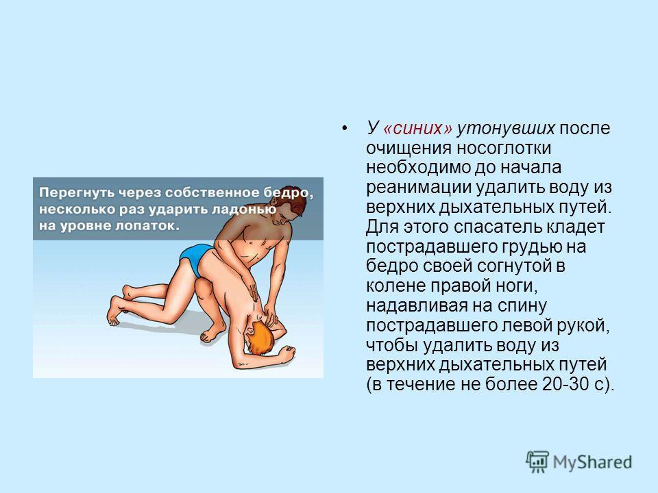 У «синих» утонувших после очищения носоглотки необходимо до начала реанимации удалить воду из верхних дыхательных путей. Для этого спасатель кладет пострадавшего грудью на бедро своей согнутой в колене правой ноги, надавливая на спину пострадавшего л