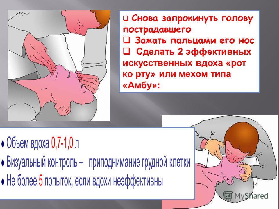 Снова запрокинуть голову пострадавшего Зажать пальцами его нос Сделать 2 эффективных искусственных вдоха «рот ко рту» или мехом типа «Амбу»: