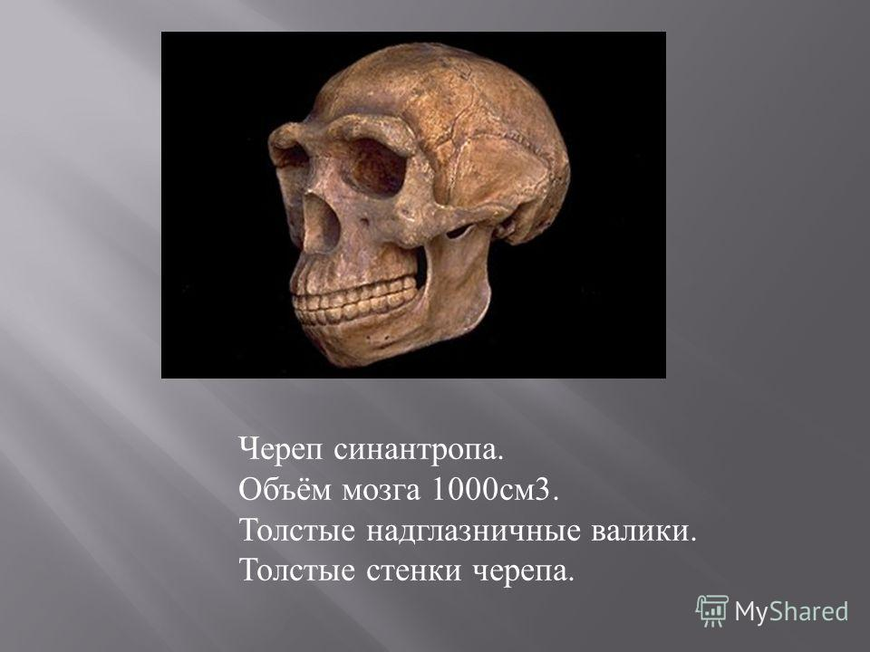 Череп синантропа. Объём мозга 1000 см 3. Толстые надглазничные валики. Толстые стенки черепа.