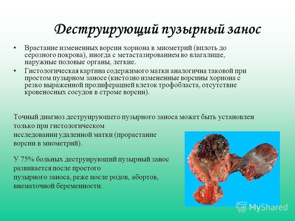 Деструирующий пузырный занос Врастание измененных ворсин хориона в миометрий (вплоть до серозного покрова), иногда с метастазированием во влагалище, наружные половые органы, легкие. Гистологическая картина содержимого матки аналогична таковой при про