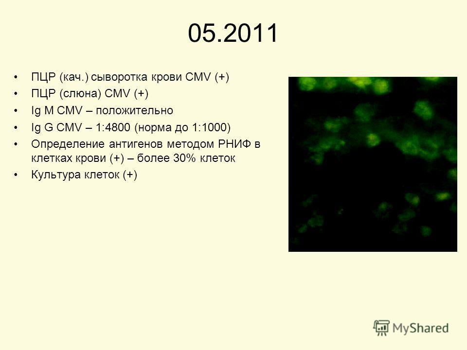 05.2011 ПЦР (кач.) сыворотка крови CMV (+) ПЦР (слюна) CMV (+) Ig M CMV – положительно Ig G CMV – 1:4800 (норма до 1:1000) Определение антигенов методом РНИФ в клетках крови (+) – более 30% клеток Культура клеток (+)