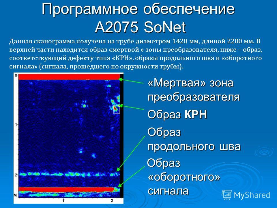 Программное обеспечение А2075 SoNet Данная сканограмма получена на трубе диаметром 1420 мм, длиной 2200 мм. В верхней части находится образ «мертвой » зоны преобразователя, ниже – образ, соответствующий дефекту типа «КРН», образы продольного шва и «о