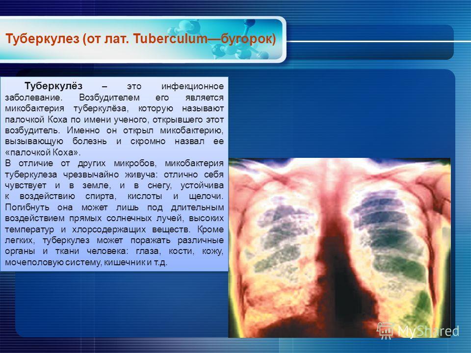 Туберкулёз – это инфекционное заболевание. Возбудителем его является микобактерия туберкулёза, которую называют палочкой Коха по имени ученого, открывшего этот возбудитель. Именно он открыл микобактерию, вызывающую болезнь и скромно назвал ее «палочк
