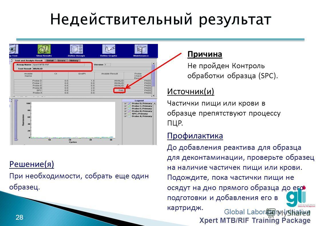 Global Laboratory Initiative Xpert MTB/RIF Training Package -28- Недействительный результат Решение(я) При необходимости, собрать еще один образец. Причина Не пройден Контроль обработки образца (SPC). Профилактика До добавления реактива для образца д