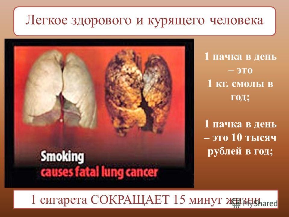 Легкое здорового и курящего человека 1 сигарета СОКРАЩАЕТ 15 минут жизни 1 пачка в день – это 1 кг. смолы в год; 1 пачка в день – это 10 тысяч рублей в год;