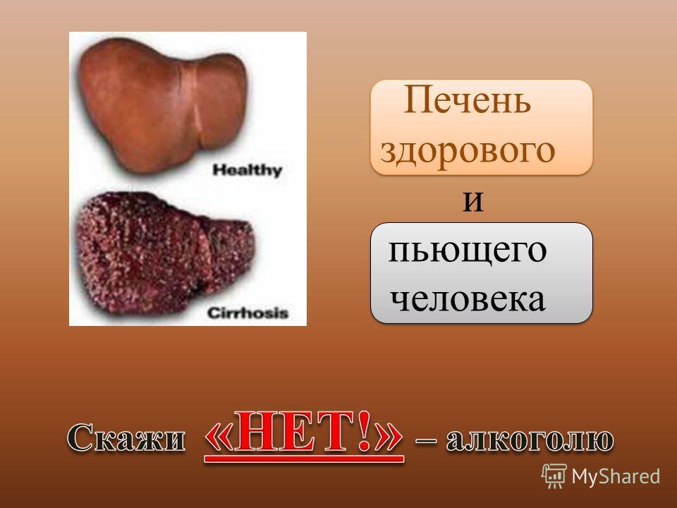 Печень здорового и пьющего человека