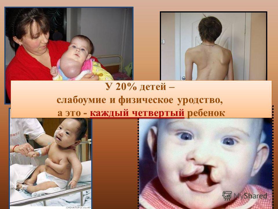 У 20% детей – слабоумие и физическое уродство, а это - каждый четвертый ребенок У 20% детей – слабоумие и физическое уродство, а это - каждый четвертый ребенок