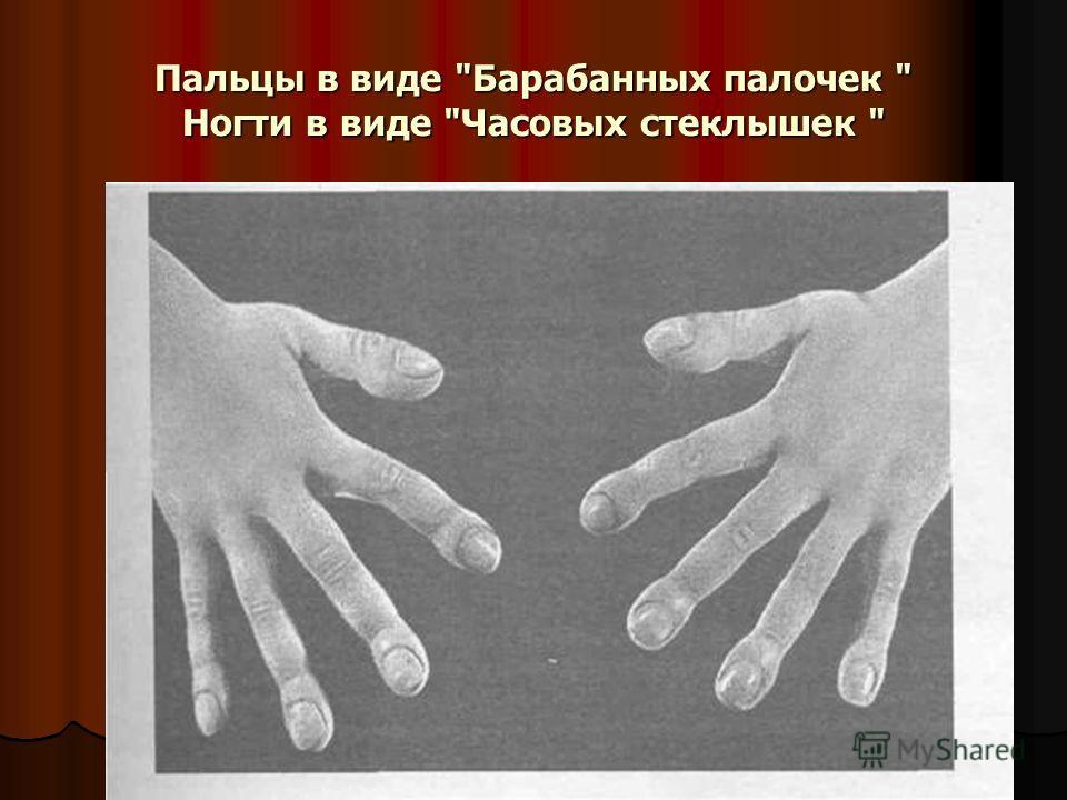 Пальцы в виде Барабанных палочек  Ногти в виде Часовых стеклышек
