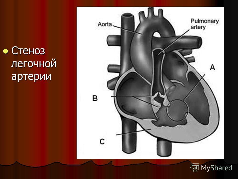 Стеноз легочной артерии Стеноз легочной артерии