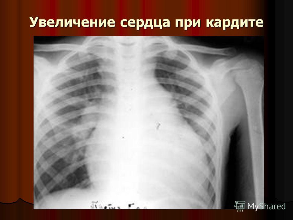 Увеличение сердца при кардите