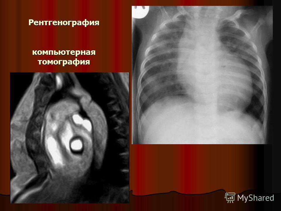 Рентгенография компьютерная томография