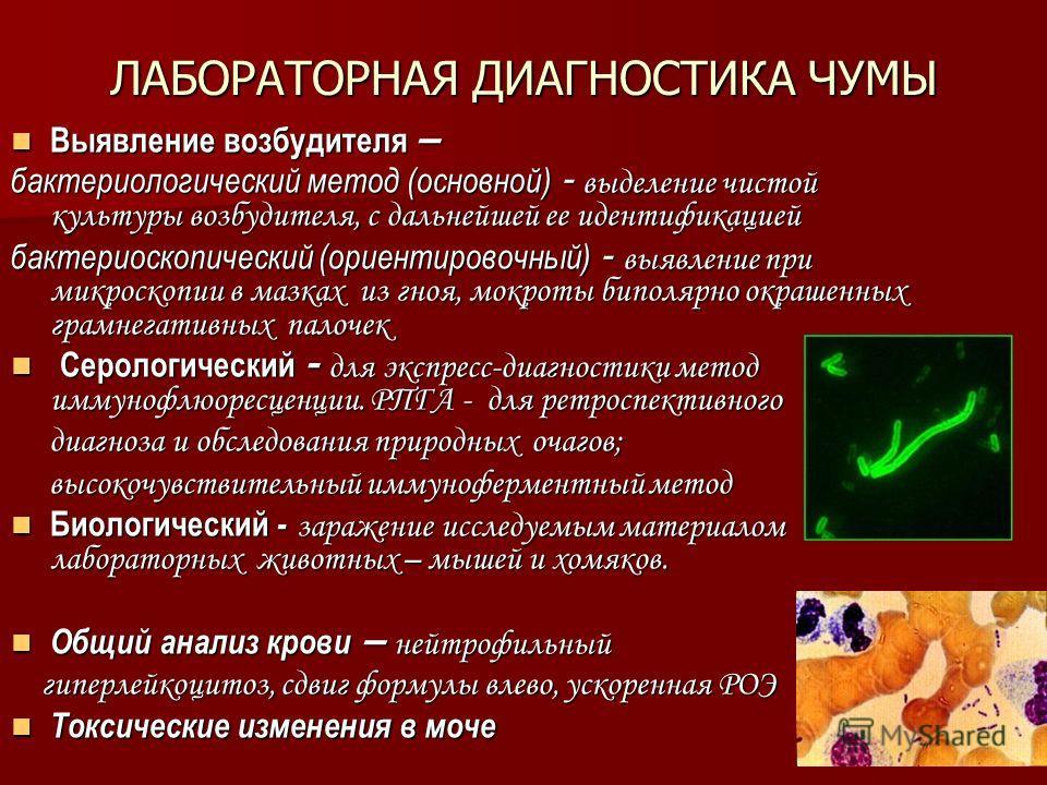 ЛАБОРАТОРНАЯ ДИАГНОСТИКА ЧУМЫ Выявление возбудителя – Выявление возбудителя – бактериологический метод (основной) - выделение чистой культуры возбудителя, с дальнейшей ее идентификацией бактериоскопический (ориентировочный) - выявление при микроскопи