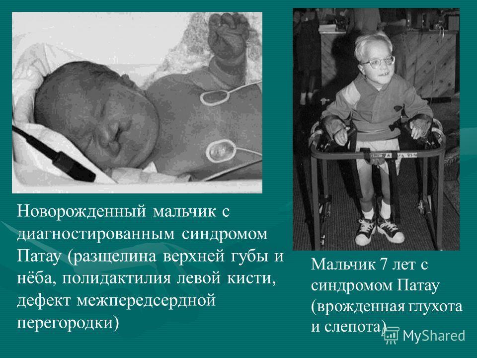 Новорожденный мальчик с диагностированным синдромом Патау (расщелина верхней губы и нёба, полидактилия левой кисти, дефект межпредсердной перегородки) Мальчик 7 лет с синдромом Патау (врожденная глухота и слепота)