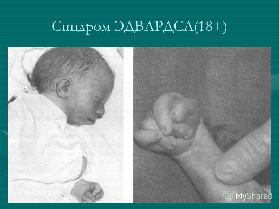 Синдром ЭДВАРДСА(18+)