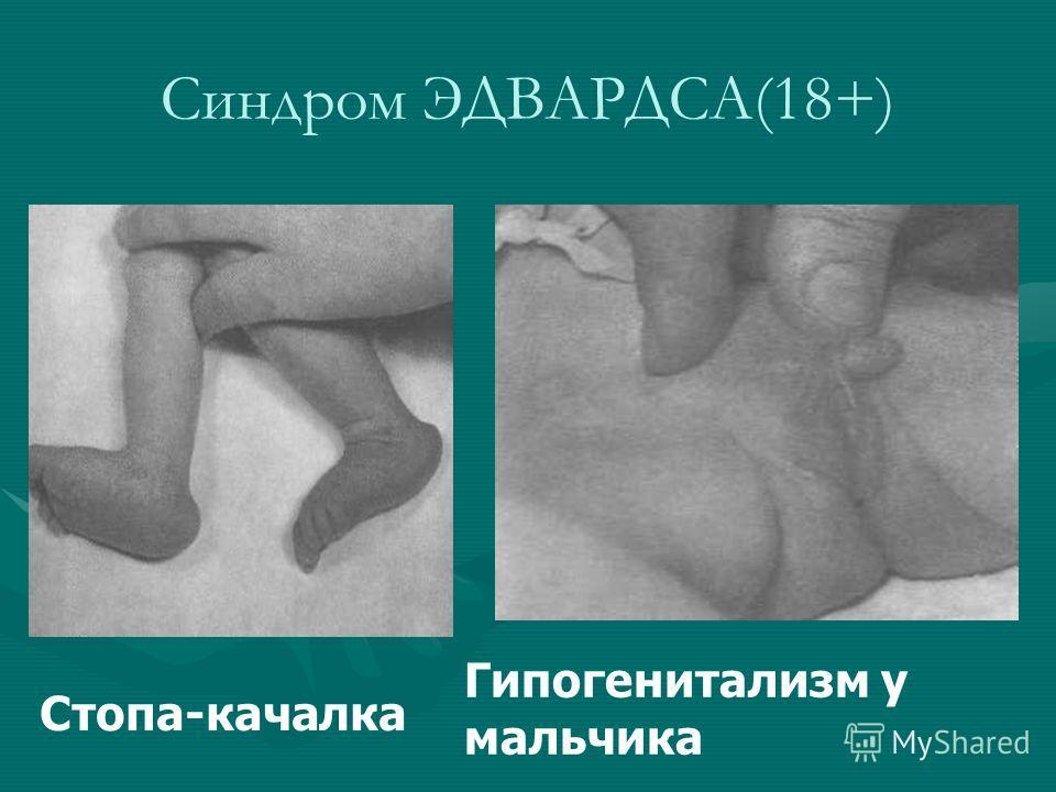 Стопа-качалка Гипогенитализм у мальчика