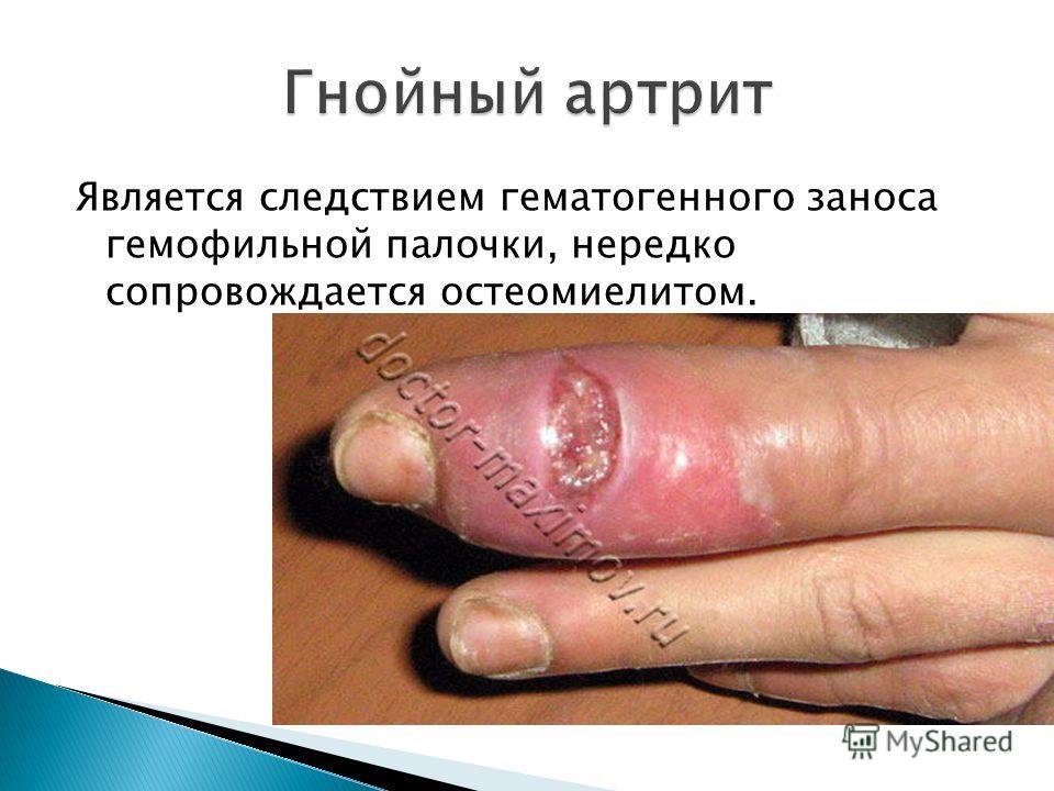 Является следствием гематогенного заноса гемофильной палочки, нередко сопровождается остеомиелитом.