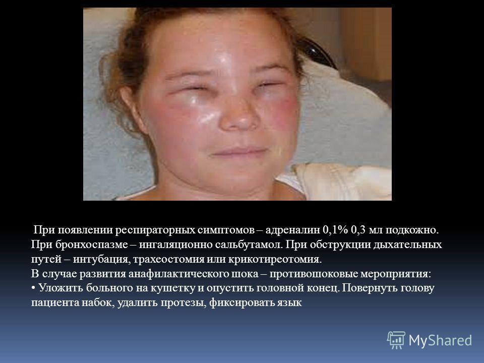 При появлении респираторных симптомов – адреналин 0,1% 0,3 мл подкожно. При бронхоспазме – ингаляционной сальбутамол. При обструкции дыхательных путей – интубация, трахеостомия или крикотиреотомия. В случае развития анафилактического шока – противошо