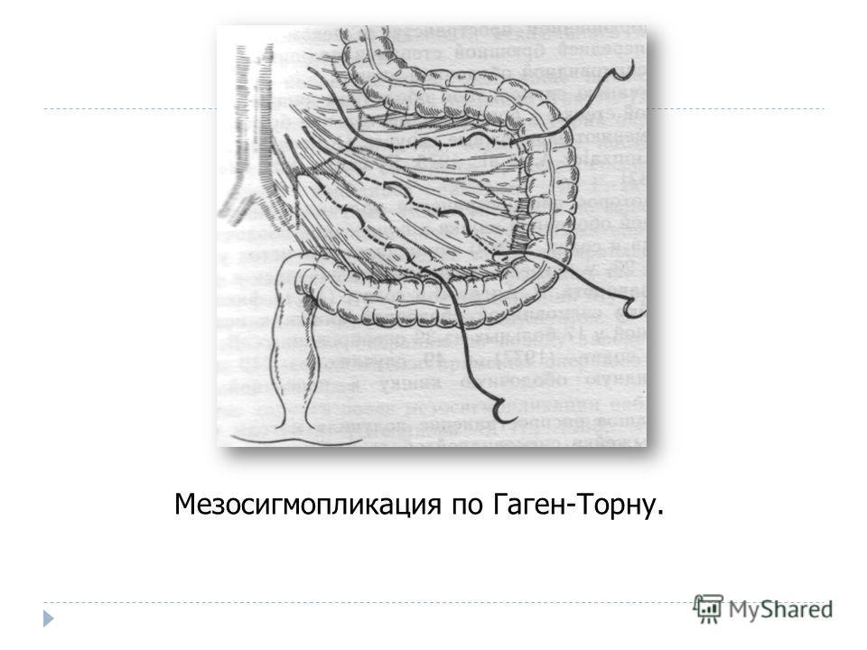 Мезосигмопликация по Гаген-Торну.