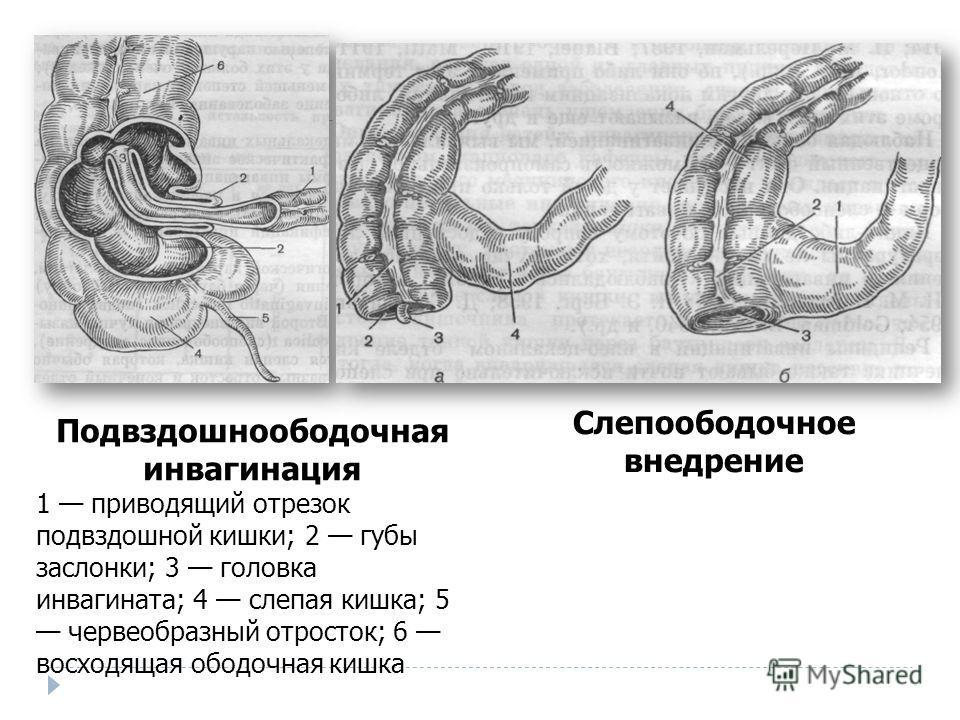 Подвздошноободочная инвагинация 1 приводящий отрезок подвздошной кишки; 2 губы заслонки; 3 головка инвагината; 4 слепая кишка; 5 червеобразный отросток; 6 восходящая ободочная кишка Слепоободочное внедрение