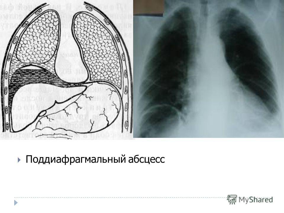 Поддиафрагмальный абсцесс